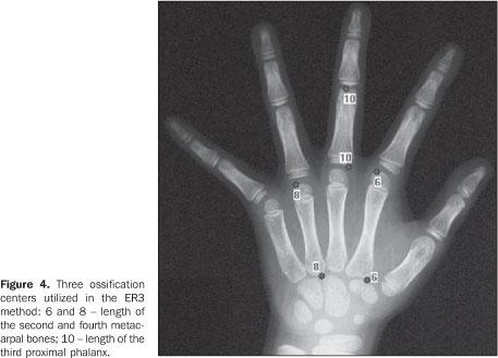 Kidshealth: X-Ray Exam: Bone Age Study   Akron Children's ...